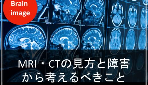 2019年4月開催の脳画像セミナーレポート